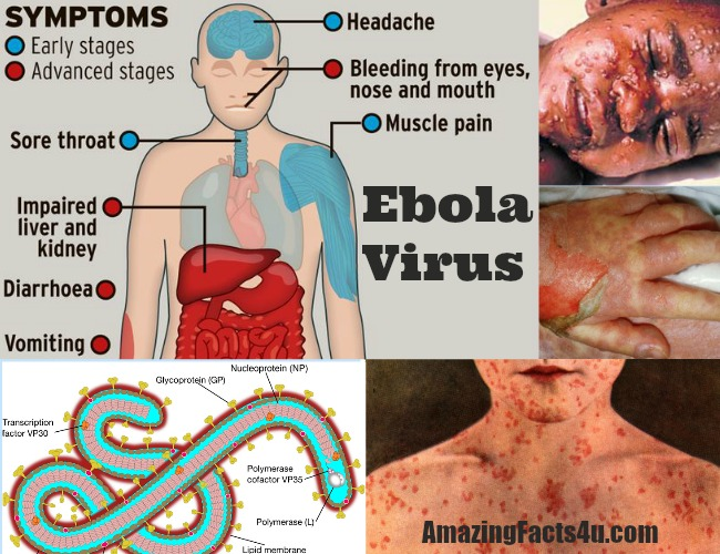 Ebola Virus Amazing Facts