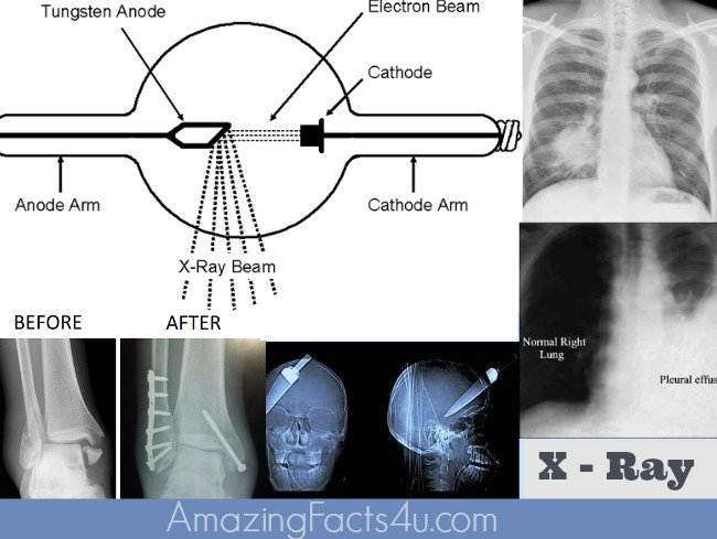 X Ray Amazing Facts